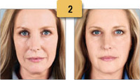 Sculptra Injections Before and After Pictures Sm 2