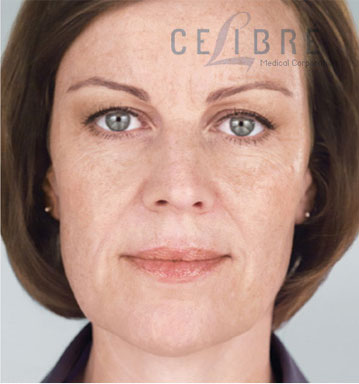 Sculptra Injections After Pictures 3