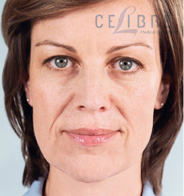 Sculptra Injections Before Pictures 3