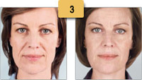 Sculptra Injections Before and After Pictures Sm 3