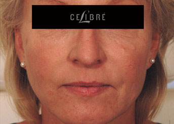 Sculptra Injections After Pictures 4