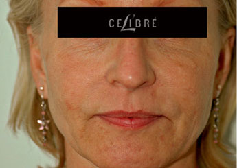 Sculptra Injections Before Pictures 4