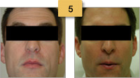 Sculptra Injections Before and After Pictures Sm 5