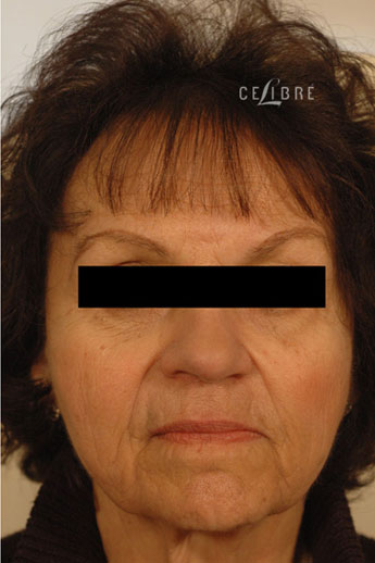 Sculptra Injections After Pictures 6
