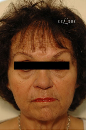 Sculptra Injections Before Pictures 6