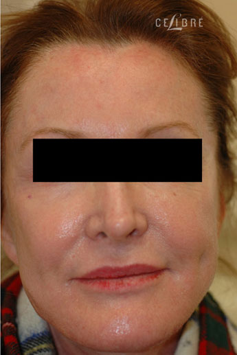 Sculptra Injections After Pictures 7