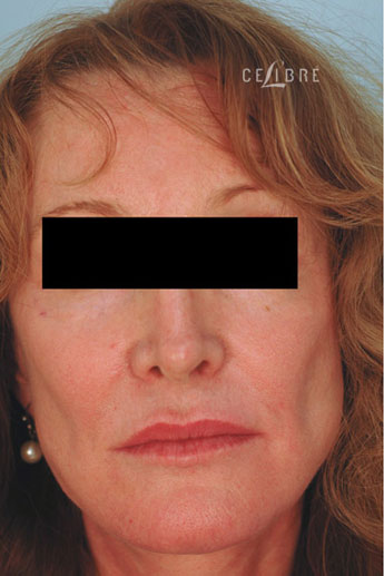 Sculptra Injections Before Pictures 7