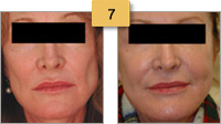 Sculptra Injections Before and After Pictures Sm 7