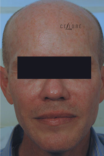 Sculptra Injections After Pictures 8