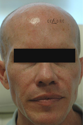 Sculptra Injections Before Pictures 8