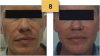 Sculptra Injections Before and After Pictures Sm 8