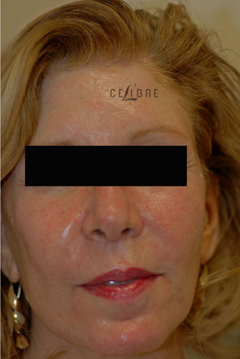 Sculptra Injections After Pictures 9