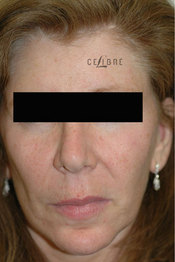 Sculptra Injections Before Pictures 9