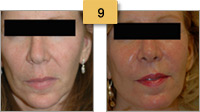 Sculptra Injections Before and After Pictures Sm 9