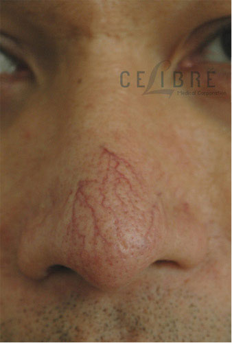 Spider Vein Removal Before Pictures 1