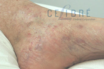 Spider Vein Removal After Pictures 4