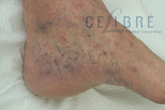 Spider Vein Removal Before Pictures 4