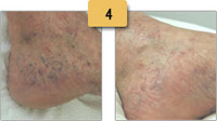 Spider Vein Removal Before and After Pictures Sm 4