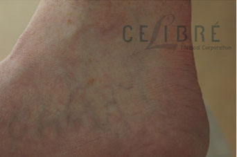 Spider Vein Removal Before Pictures 5