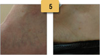Spider Vein Removal Before and After Pictures Sm 5