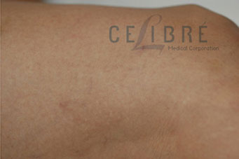 Spider Vein Removal After Pictures 6