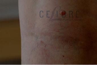 Spider Vein Removal After Pictures 8