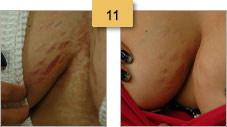 Breast Stretch Mark Removal Before and After Pictures Sm 11