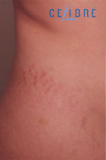 Stretch Mark Removal on Side Before Picture 10