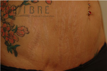 Before And After Stretch Mark Removal On Stomach 6