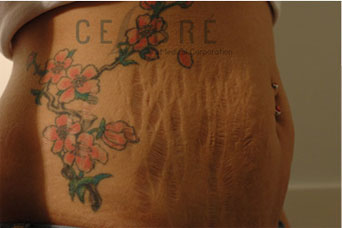 Stretch Mark Removal Before Pictures 6