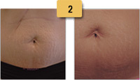 Stretch Mark Removal Before and After Pictures Sm 2