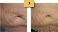 Stretch Mark Laser Removal Before and After Pictures Sm 3