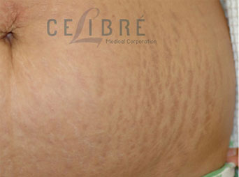 Stretch Mark Removal Before Pregnancy Picture 5