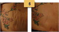 Stretch Marks Laser Treatment Before and After Pictures Sm 6