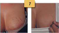 Stretch Mark Removal Before and After Pictures Sm 7