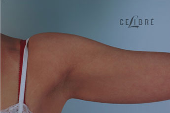 Stretch Mark Removal After Picture on Arm 8