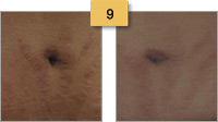 Stretch Mark Removal Before and After Pictures Sm 9
