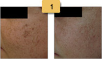 Sun Spots (Age Spots) Removal Before and After Pictures Sm 1