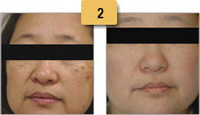 Sun Spots (Age Spots) Removal Before and After Pictures Sm 2
