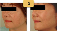 Sun Spots (Age Spots) Removal Before and After Pictures Sm 3