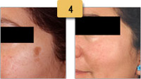 Sun Spots (Age Spots) Removal Before and After Pictures Sm 4