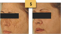 Sun Spots (Age Spots) Removal Before and After Pictures Sm 5