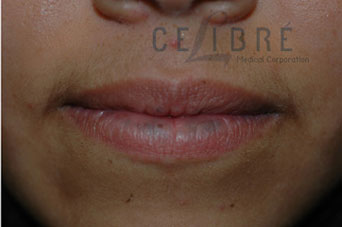 Before And After Sun Spots Removal On Lip 7