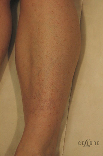 Sun Spots Laser Removal After Pictures 9