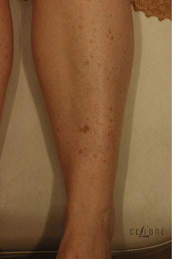 Sun Spots Laser Removal Before Pictures 9