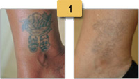 Tattoo Removal Before and After Pictures Sm 1