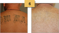 Tattoo Removal Before and After Pictures Sm 6