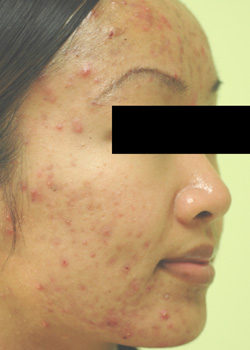 orange county california acne laser treatment before and after pictures