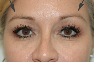 botox brow lift los angeles after