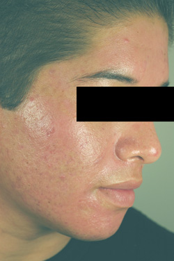 acne laser treatment photodynamic therapy los angeles